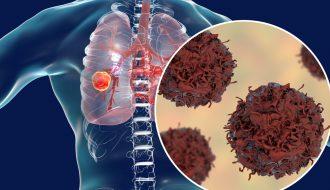 Những dấu hiệu cho thấy nguy cơ bị ung thư phổi